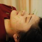川崎美容鍼事例11